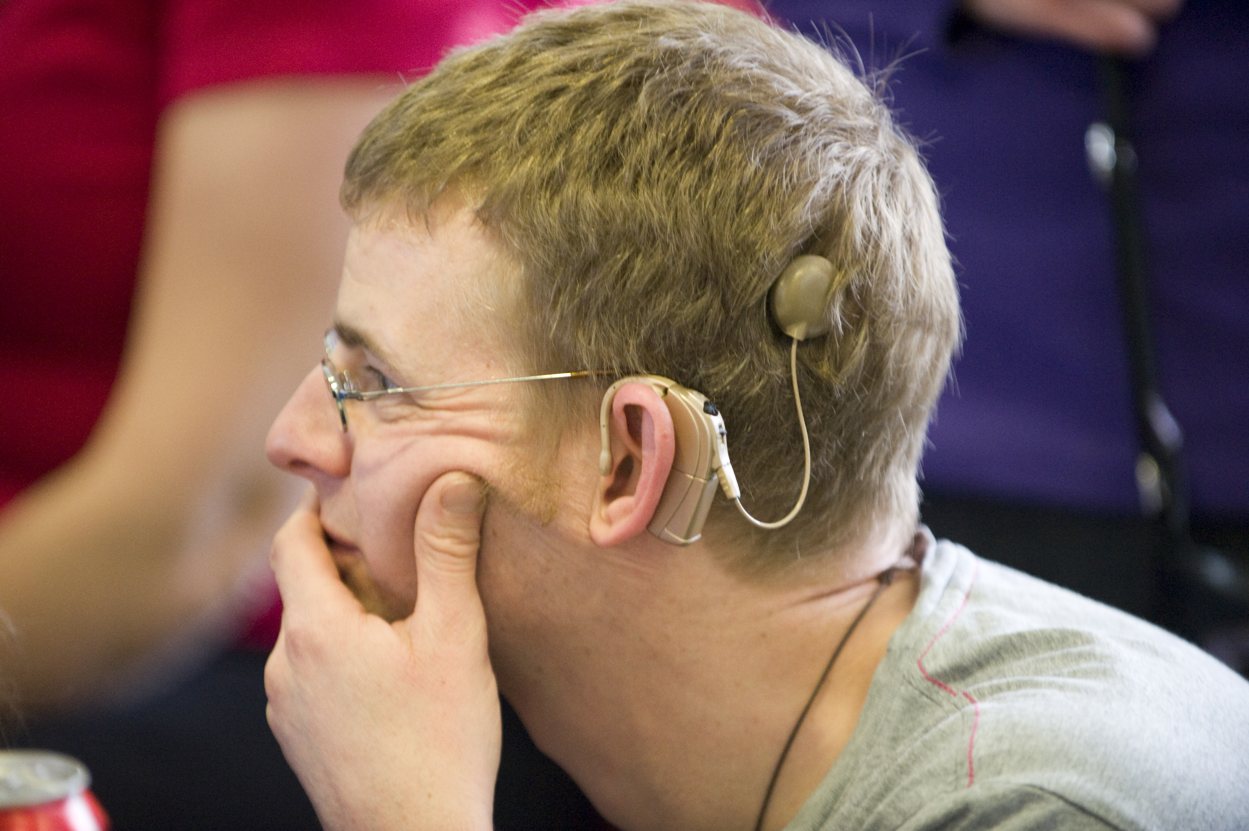 Cochlear implant  Wikipedia